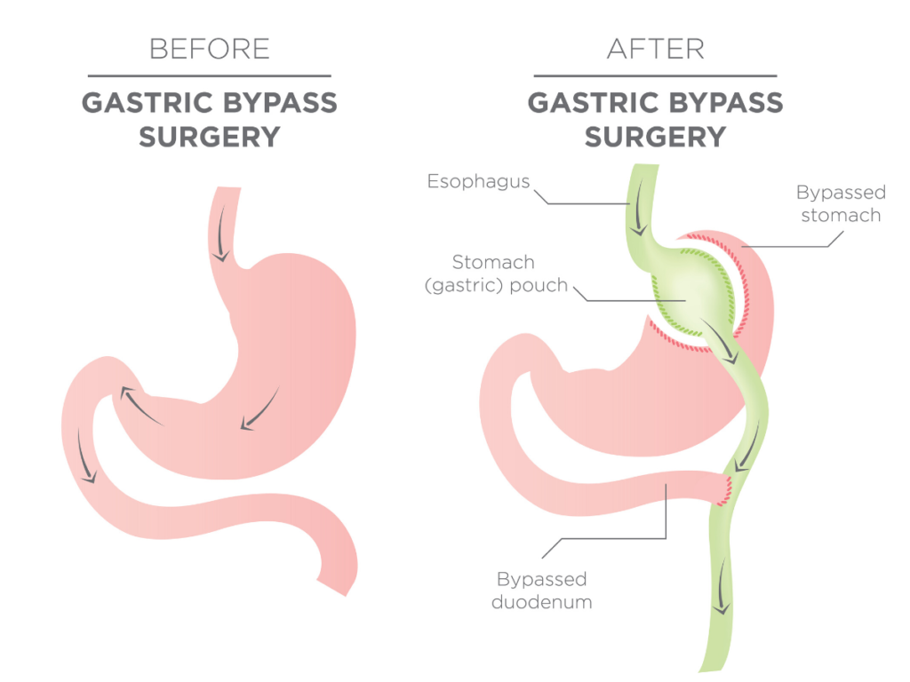 You cannot have gastric bypass surgery twice because you cannot bypass more bowel and stomach