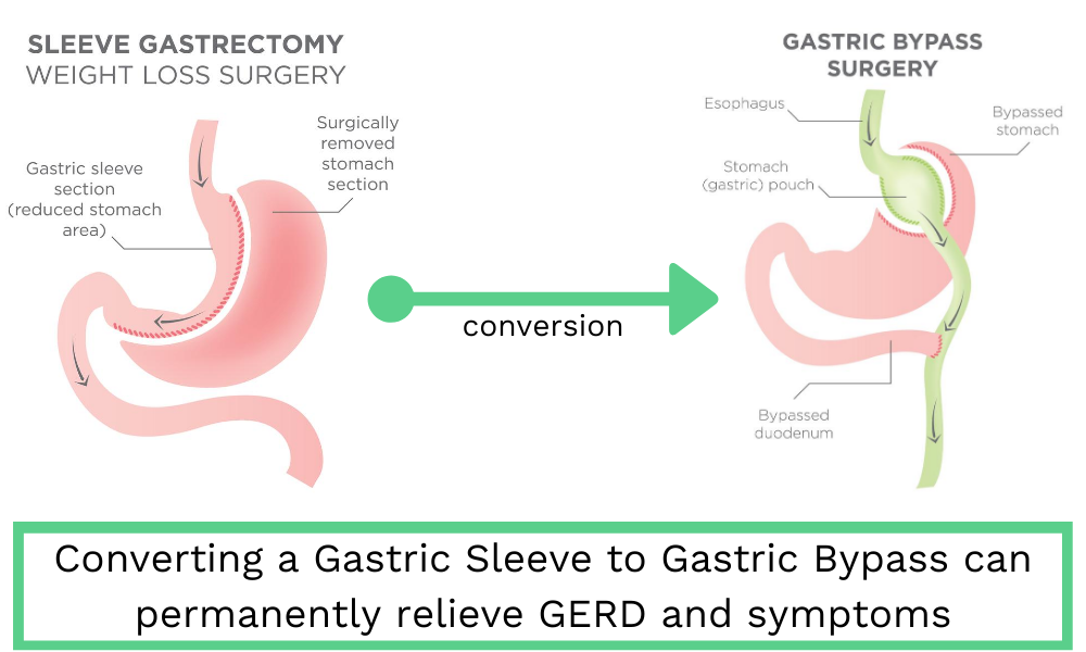 Converting from a Gastric Sleeve to Gastric Bypass can permanently relieve GERD and symptoms