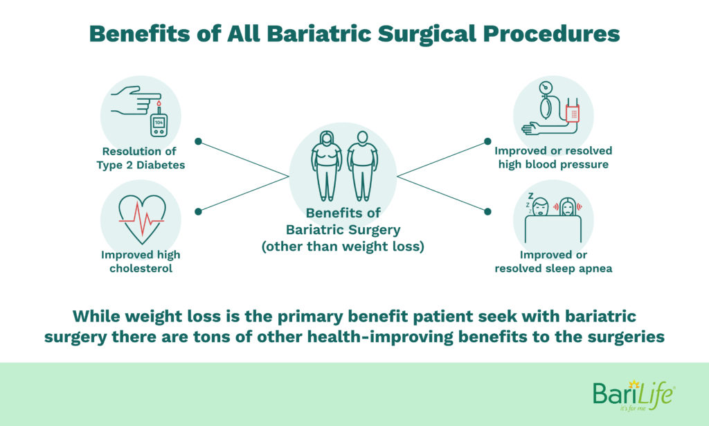 Benefits of bariatric surgery