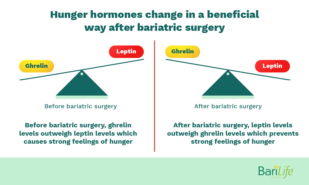 Pros and cons of gastric sleeve are beneficial hormonal changes