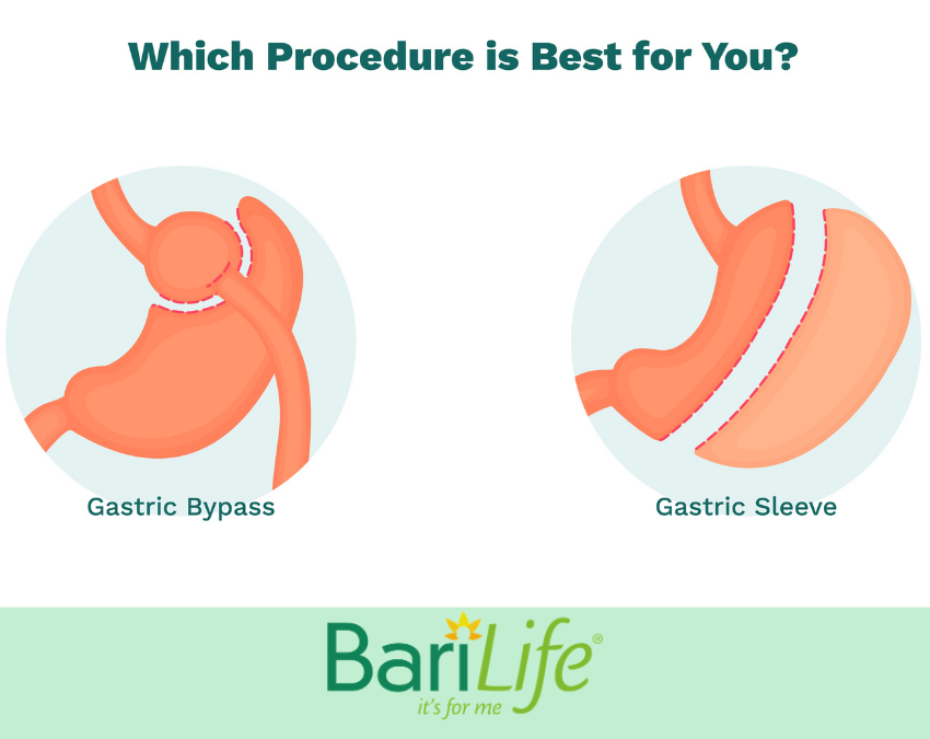 gastric-sleeve-vs-gastric-bypass-pros-and-cons-feature