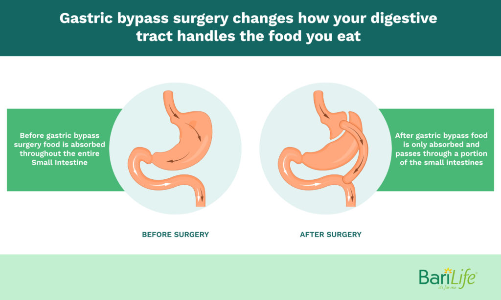 How food is handled before and after bariatric surgery