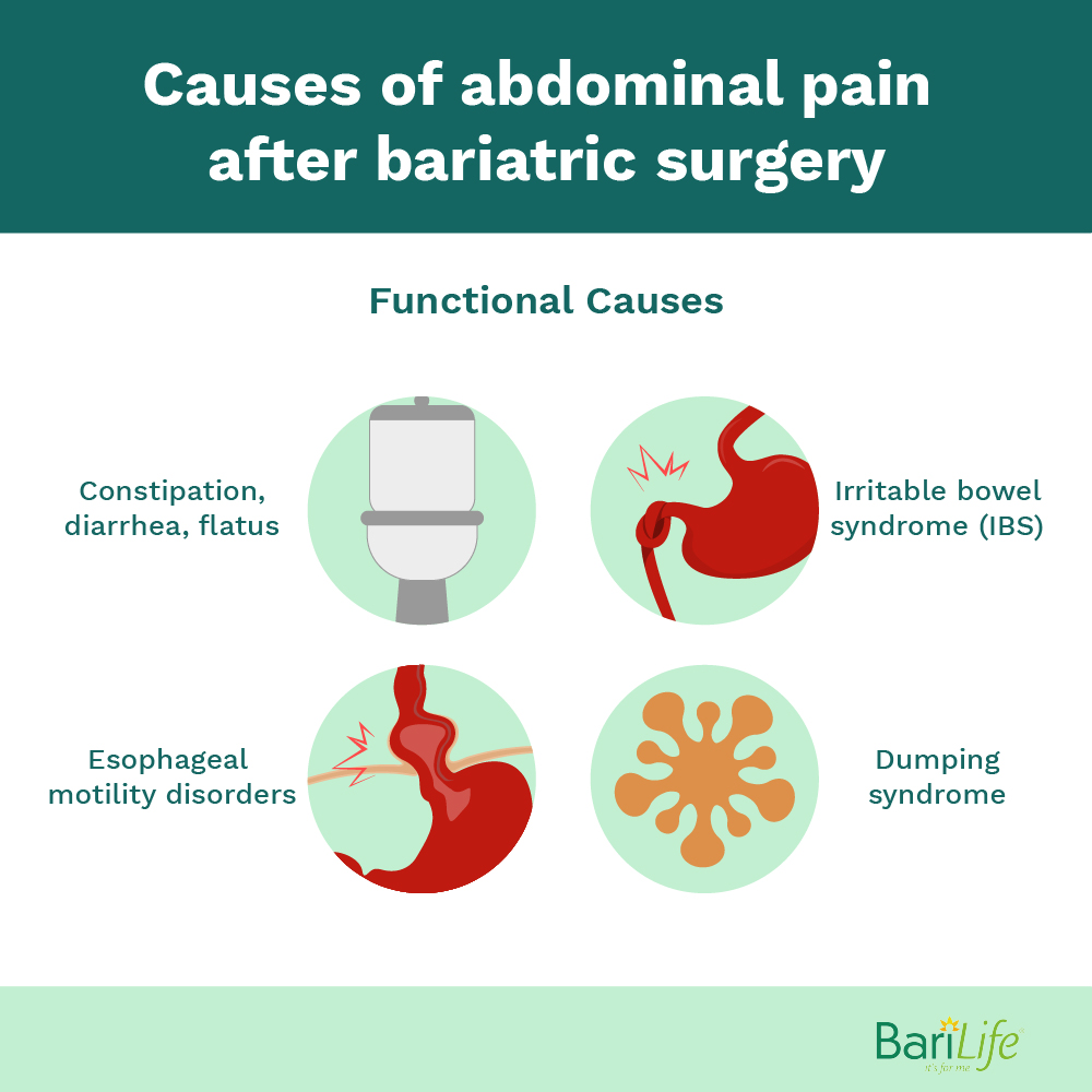 Functional causes for abdominal pain after gastric bypass