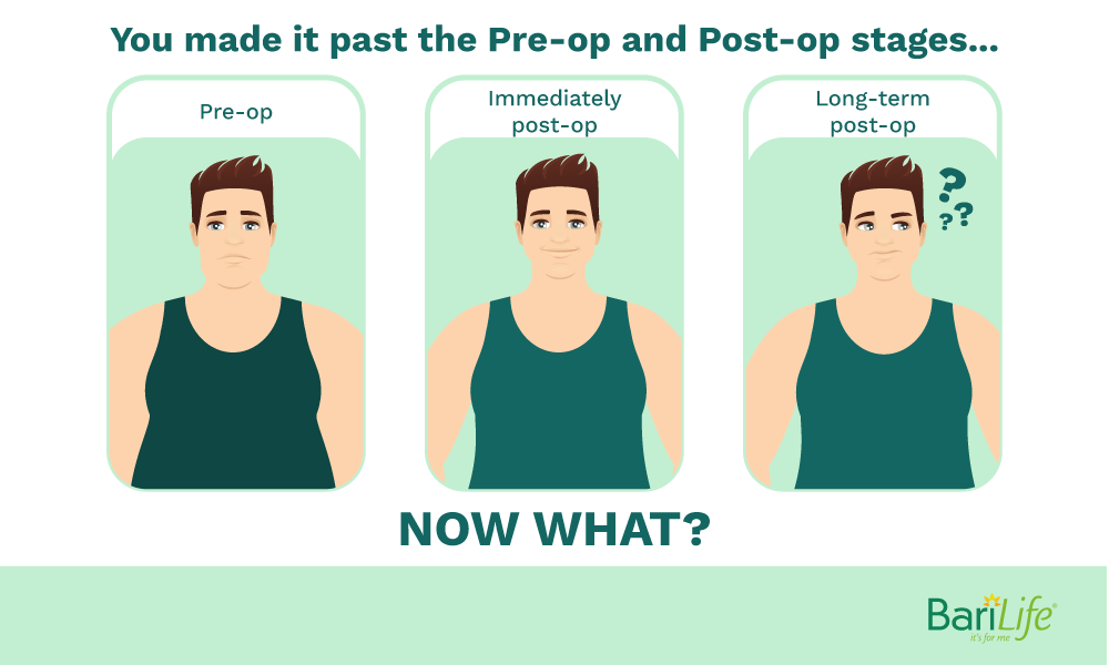 What to do after the short term post op bariatric phases